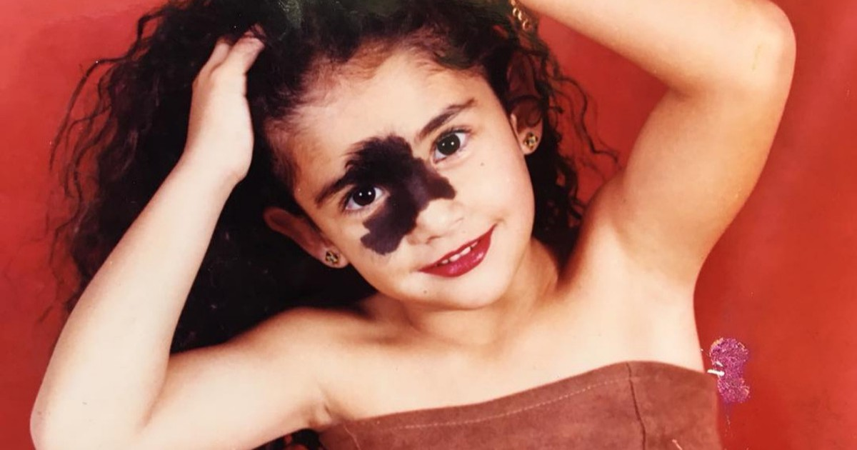 People Told Her To Remove Her Birthmark, Today She's A Model