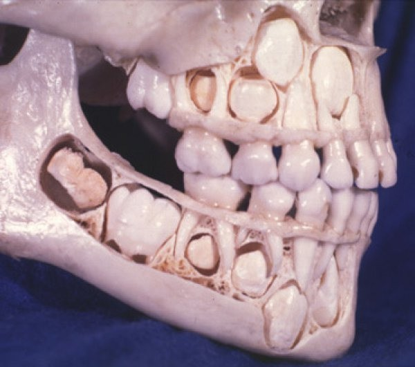 This is what it looks like when someone still have all of their baby teeth.