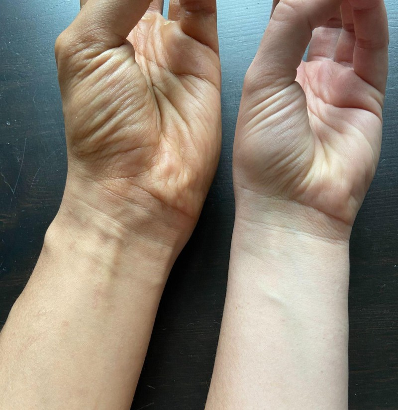 The hollow muscle of the hand is still only present in some people.
