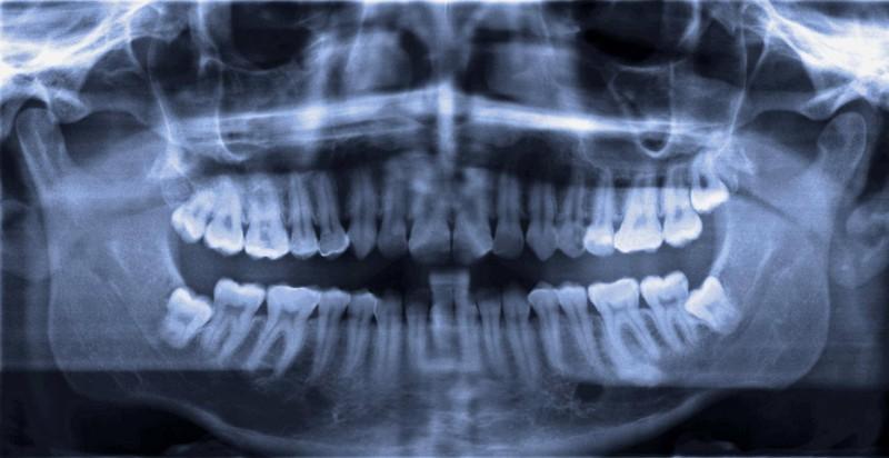 Wisdom teeth are also an evolutionary leftover