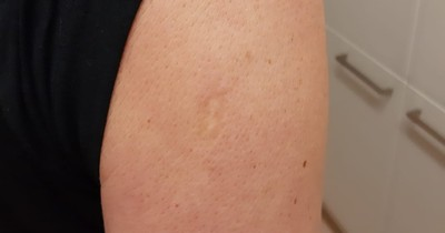 Upper Arm Scar: Many People Have It, But For What Reason?
