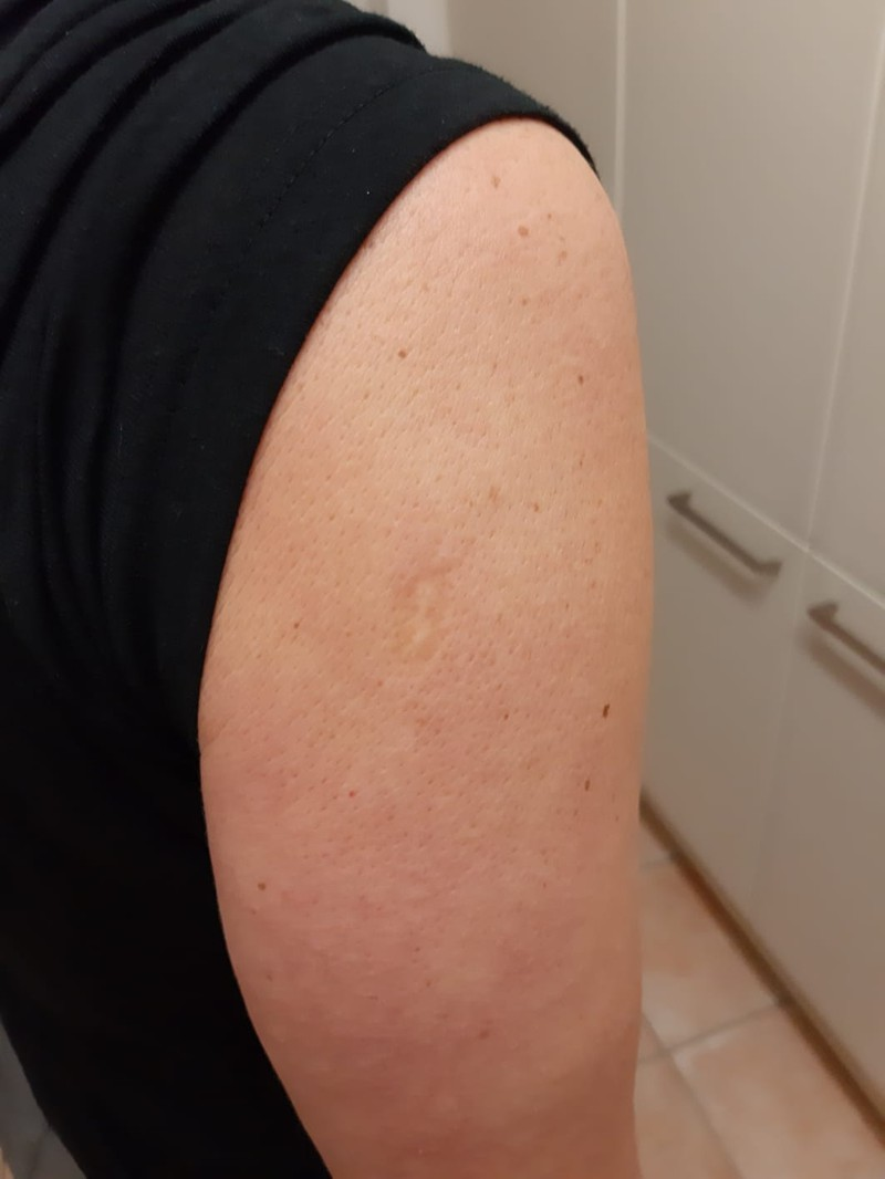 Many people have a scar from the smallpox vaccine on their arm.